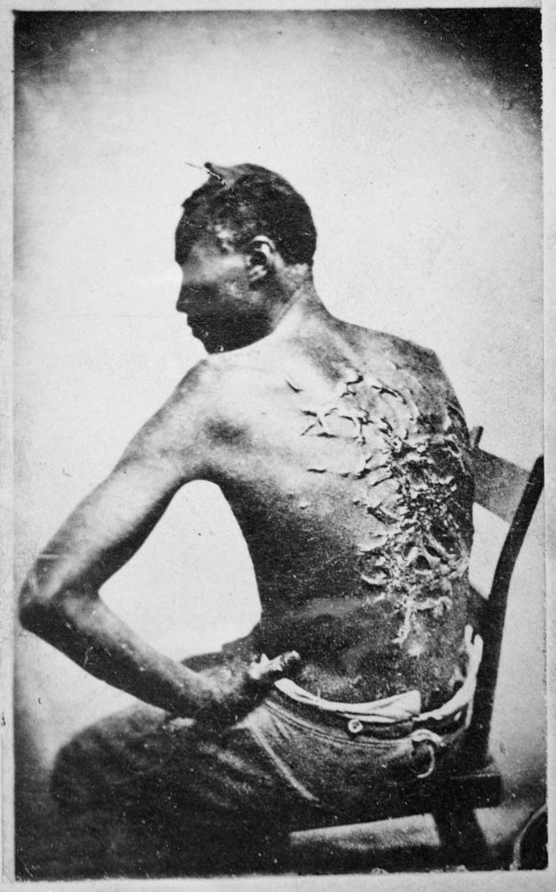 the civil war outcome why Get an answer for 'what were the causes of the biafran/nigerian civil war what were its outcomes' and find homework help for other biafra/nigeria questions at enotes.